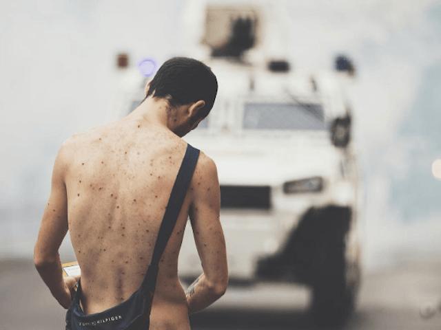 Venezuela Protest 2017